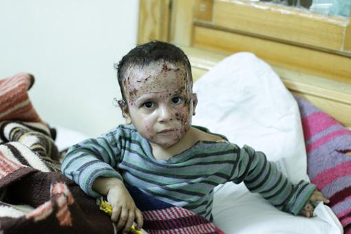 火傷を負ったシリアの男の子。民間人を巻き込む無差別攻撃で人びとは追い詰められている ©MSF