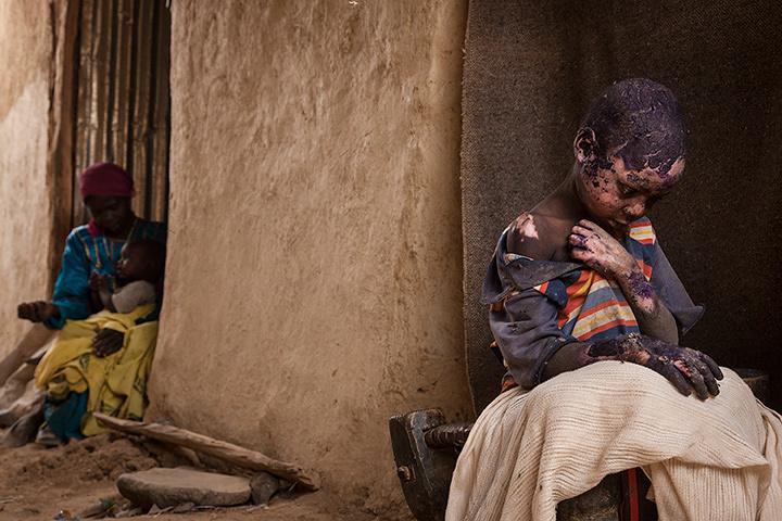 現代社会の問題の部 単写真2位 エイドリアン・オーネシアン(米国) 2015年2月27日 中部ダルフール州(スーダン)