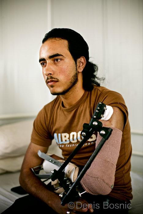 『畑仕事中に爆撃により負傷したシリア人男性』 ©Denis Bosnic