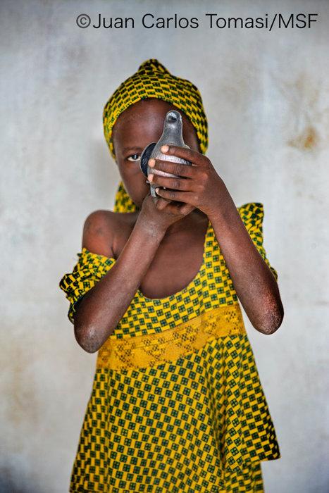『故郷の村が襲撃されジャングルを抜けニジェールに逃げてきた 9 歳の少女』 ©Juan Carlos Tomasi/MSF