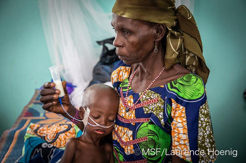 『ニジェールで栄養失調の治療を受ける幼児』 ©Laurence Hoenig/MSF